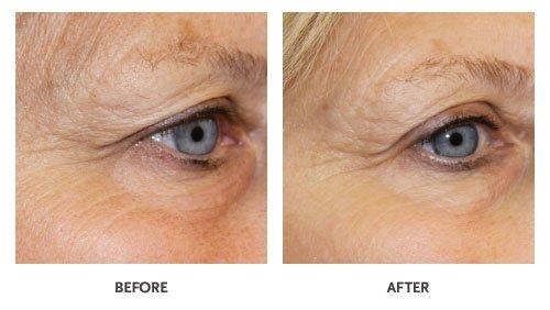 Efecto de GLO sobre la piel.