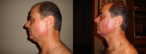 Testimonio Ageless nutrición para la piel